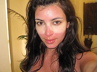 PHOTO: Kim Kardashian Shows Off Her Sunburn