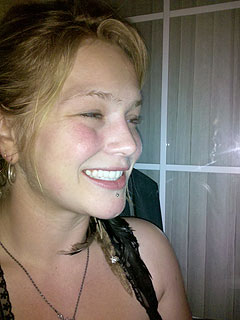 PHOTO: Idol's Crystal Bowersox Gets Her Teeth Fixed