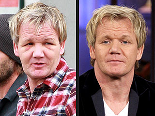 Gordon Ramsay Explains His 'Hair Nightmare' and Puffy Face