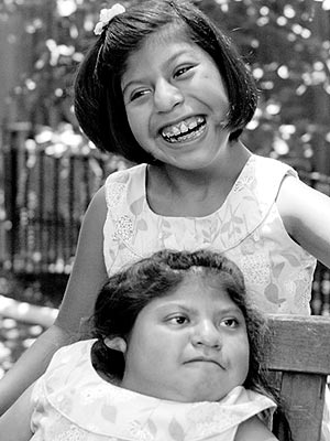 Former Conjoined Twins Turn 10 Years Old