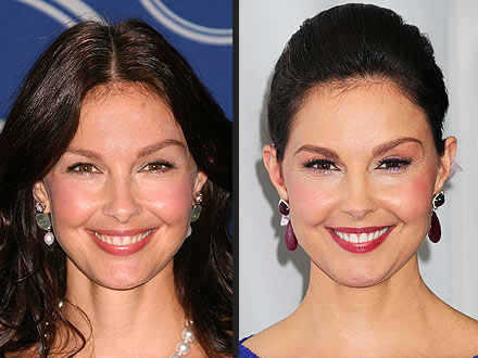 Ashley Judd Blames Steroids for Her Puffy Face