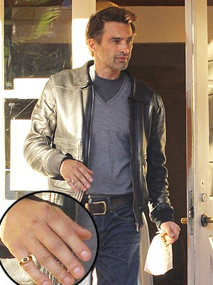 Olivier Martinez Shows Off Swollen Hand Post-Holiday Brawl | Olivier Martinez