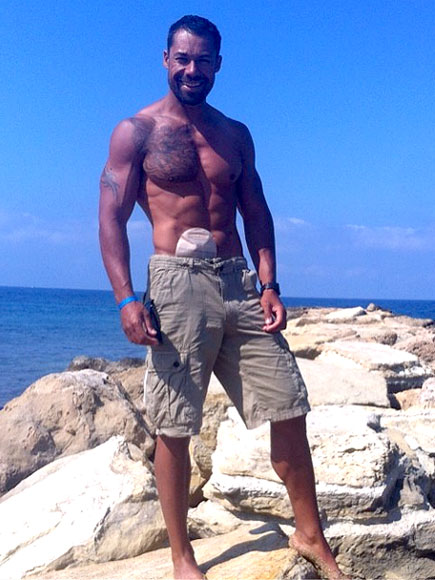 Model Battling Chronic Bowel Disease Lands Shirtless Centerfold – with His Ileostomy Bag