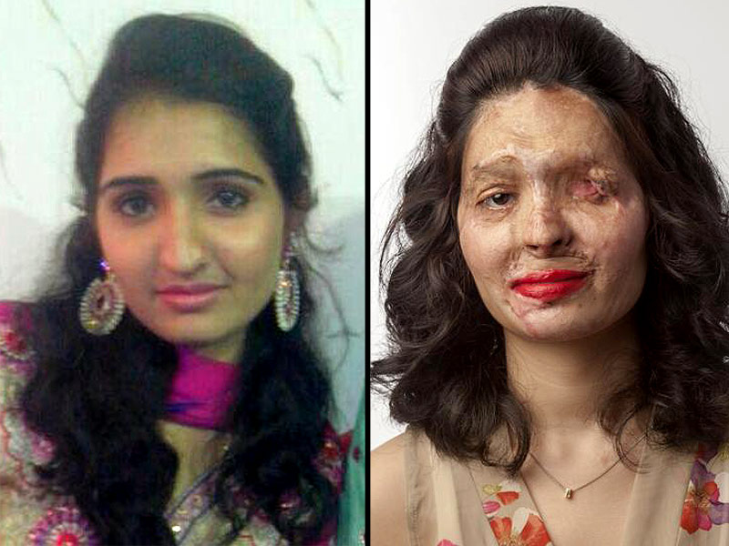 Reshma Quereshi, Acid Attack Survivor, Speaks Out