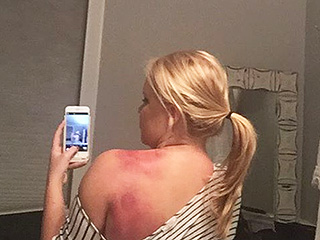 Amy Schumer Shows Off SNL Battle Wounds: 'This Is What Happens When You Repeatedly Run Into a Fake Airplane Door'