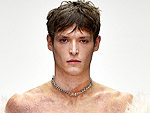 This Model with Burns Covering 90 Percent of His Body Says He Feels 'Super Confident' Walking in Fashion Week