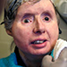Chimpanzee Attack Victim Charla Nash Back in Hospital to Fight Off Rejection of Face Transplant