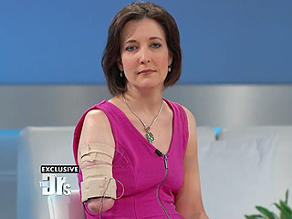 See the Prosthesis Worn by the 'Most Advanced Amputee in the World' on The Doctors