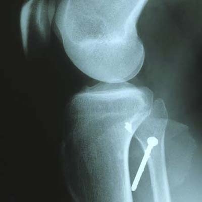 nail gun injury in femur