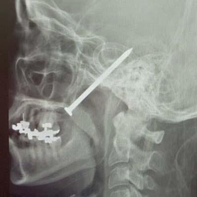 nail gun injury in leg