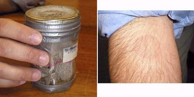 bedbug bites on Dr. Sorkin's arm